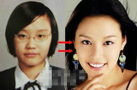 整容失败的韩国女星 脸变加菲猫